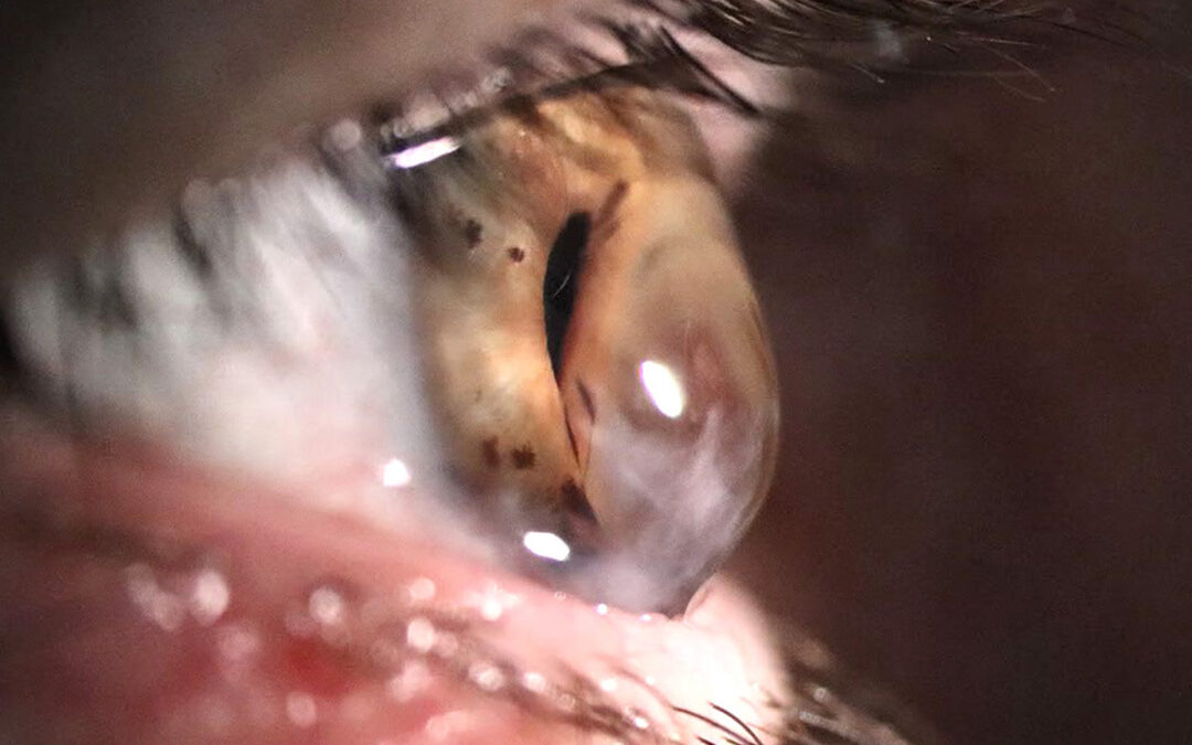 Caso 012 – Degeneración marginal pelúcida