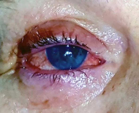Caso 011 – Penfigoide, Ojo Seco y Distrofia Corneal